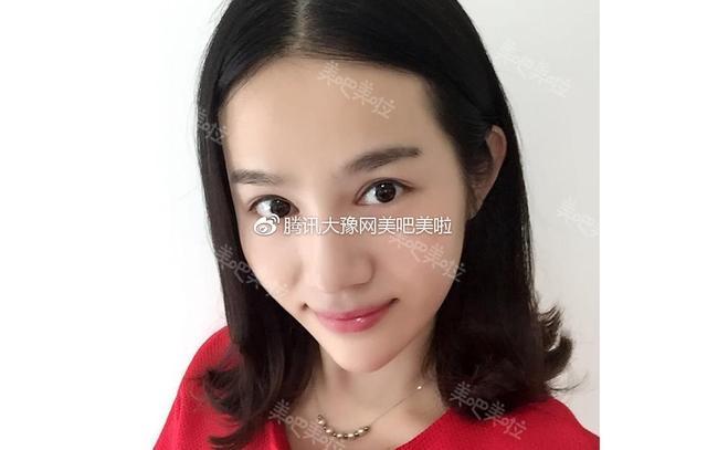 郑州准新娘注射玻尿酸  美成混血儿