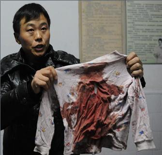 受伤学生家人在展示孩子当时所穿的衣服