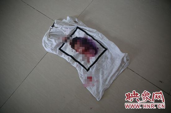 河南17岁男孩身陷传销寄回带血图 被困21天获救