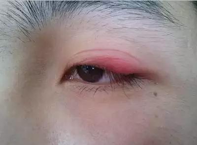 女子长期使用双眼皮贴,眼皮变红肿吓人