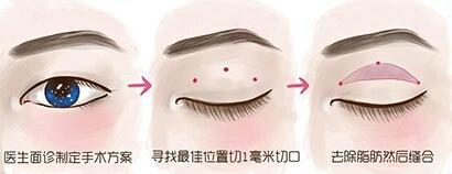 微创双眼皮 无痕大眼小心机