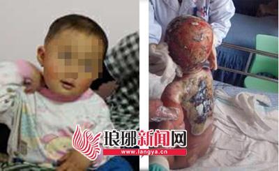 1岁小童遭房主浇开水严重烫伤 河南网友捐献7万