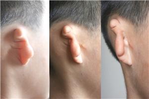 我国每年1万名耳畸形新生儿出生,公益救助上线