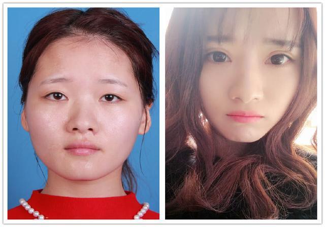 美吧美啦案例:女主播做双眼皮手术,卸妆对比照曝光