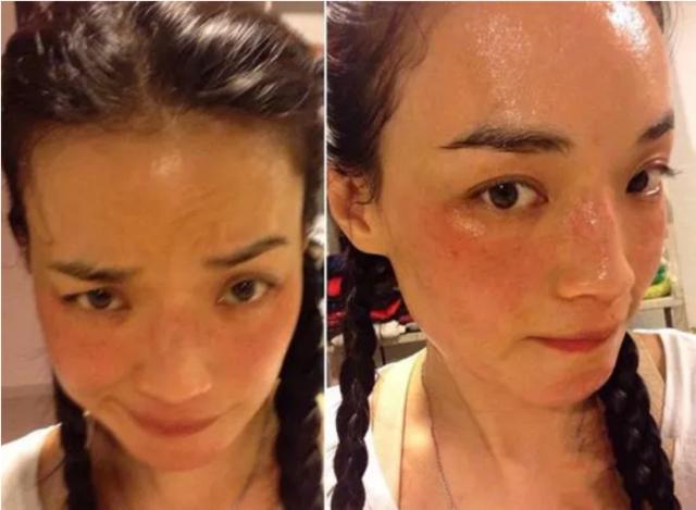 换季皮肤敏感,研究了一圈发现这招最有效!
