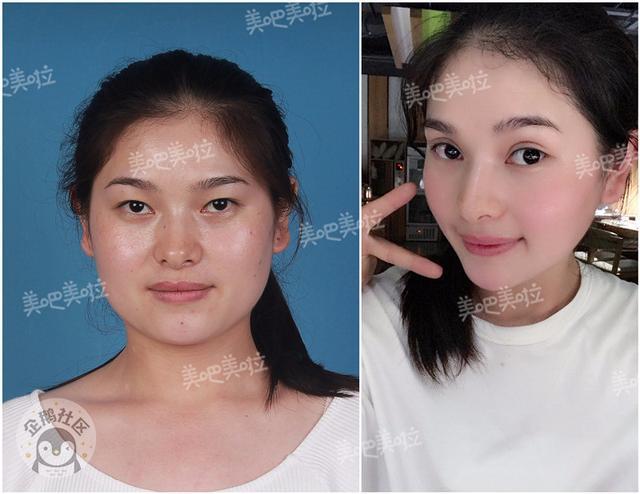 郑州上千人做双眼皮 术后效果曝光