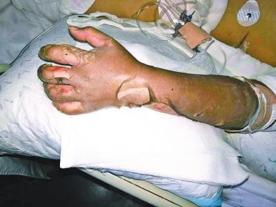 家中液化气爆炸 荥阳17岁女孩全身烧伤面积达58%