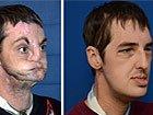 美国男子完全变脸手术前后差距大