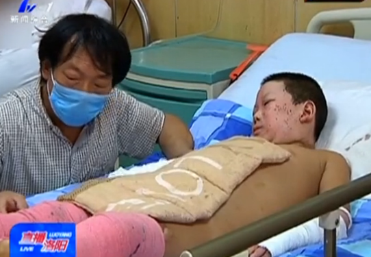 洛阳两幼童巧遇邻居家液化气爆炸 全身大面积烧伤