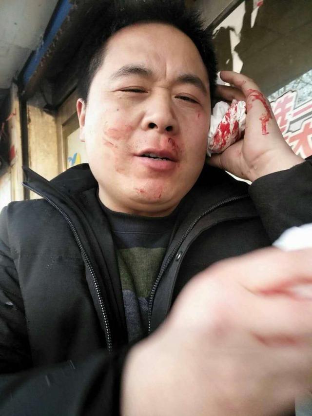 平顶山男子刚走出店门 空中坠落一物砸得他满脸是血