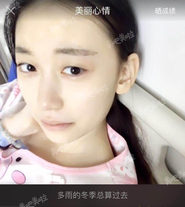 郑州姑娘割双眼皮,如今过足了网红瘾