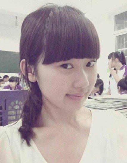 郑州18岁女生骑电动车开颅昏迷喜欢手术半月的摔伤女生变丑了图片