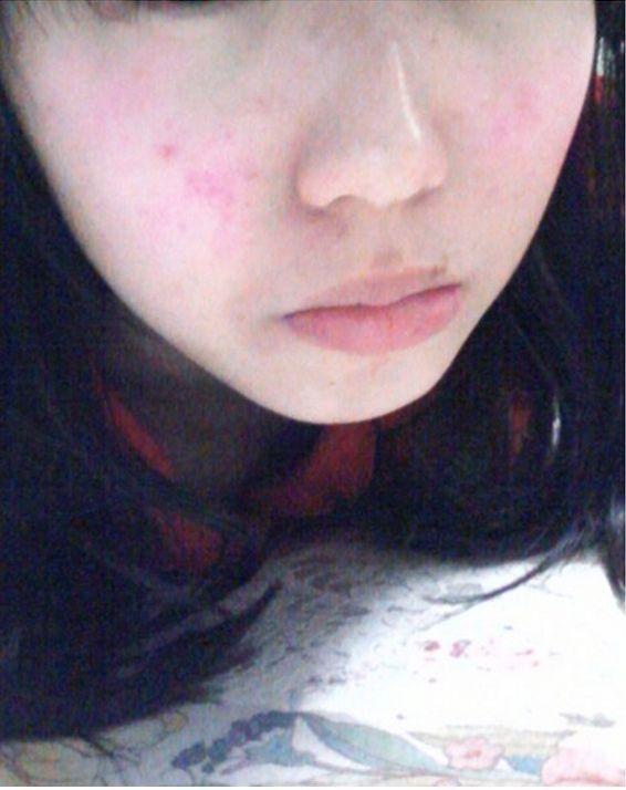 天气转凉了,脸上的皮肤干燥蜕皮怎么办?