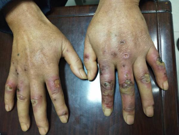 长沙60岁男子长冻疮后仍用冷水洗菜 一个月后十根手指