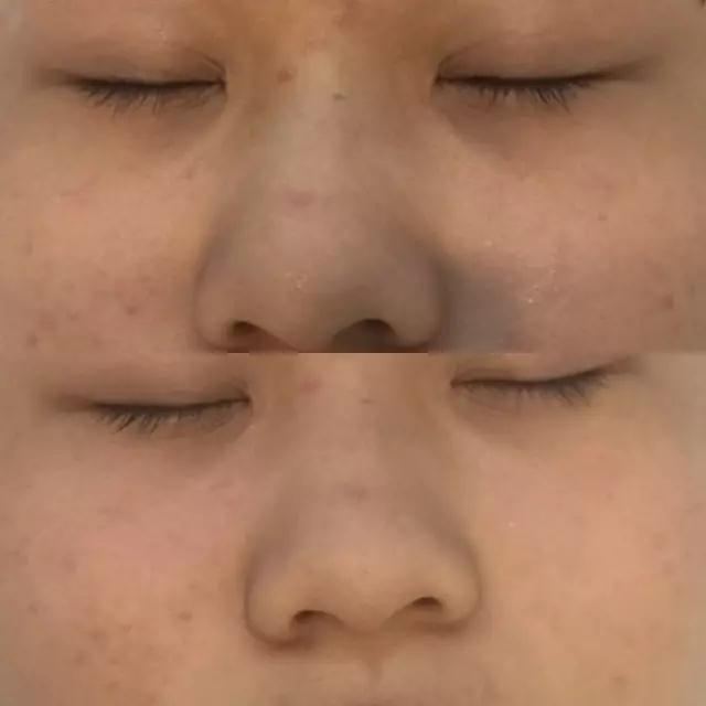 整个脸都变亮了,我鼻子上让我头痛了很久了的红肿的痘痘,也得到一定的