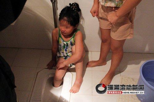 张家界一8岁小女孩右脚卡进浴厕大便
