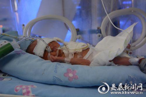"""据医生说:""""小毛""""是医院迄今为止同类型早产儿各项指标最不好的一例"""""""