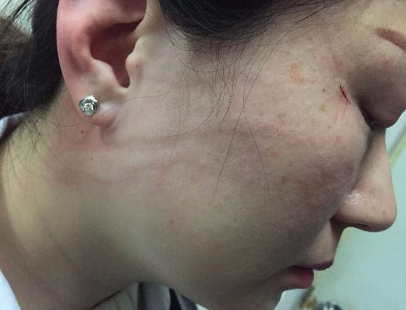 长沙一女医生遭患者家属质疑 被打脑震荡多处受伤