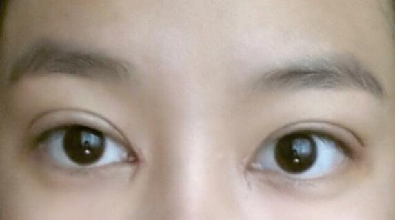达人全程实拍割双眼皮过程 看大眼养成记