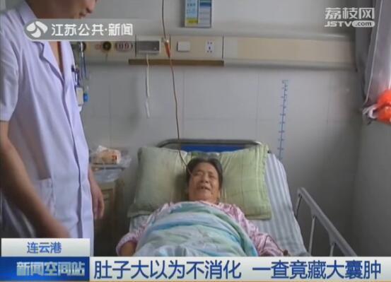 连云港:肚子大以为不消化 一查竟藏大囊肿