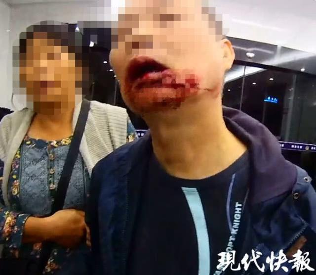 南京两位市民在广场休息 竟无辜被拉断两颗牙