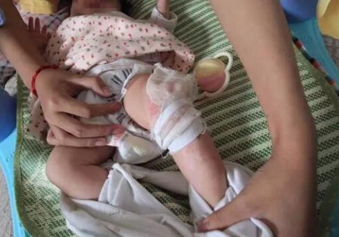 """""""两月大女婴在母婴店洗澡被烫伤"""
