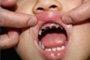 """""""4岁男童睡前不刷牙"""