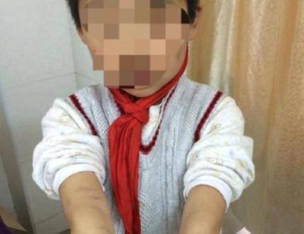 """南京江宁区法院:""""虐童案""""发帖网友不侵权"""