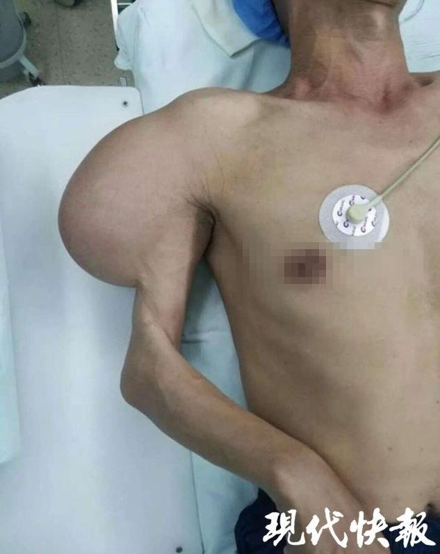 男子手臂上挂脂肪瘤近30年 重达8斤直径15公分