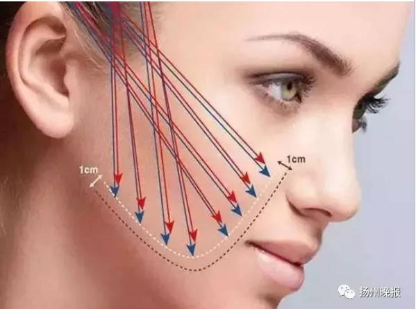 女孩做完美容手术面部肿胀 医生从其鼻中取出13根线