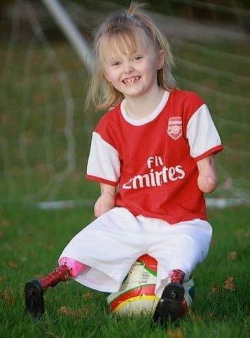 组图:感动! 7岁无四肢女童驰骋足球场