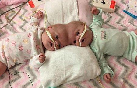一对连体婴头顶相连 经11小时手术后成功分离