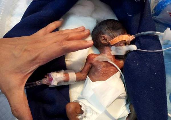 印早产男婴仅手掌大 成功接受心脏手术