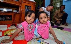 印尼连体小姐妹共用一颗心脏