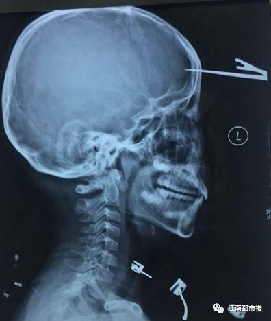 10岁男童不慎将剪刀插入颅内不是开玩笑 你家处处有危险
