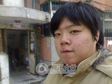 晒v男生:男生脸大饼瘦脸注意针瘦脸哪些打记录第一次图片