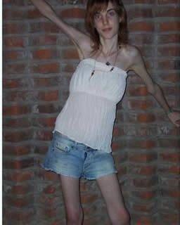 世界上最瘦的骷髅女_