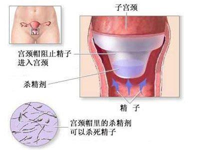 全面目击女人避孕全过程(图)_女性_腾讯网