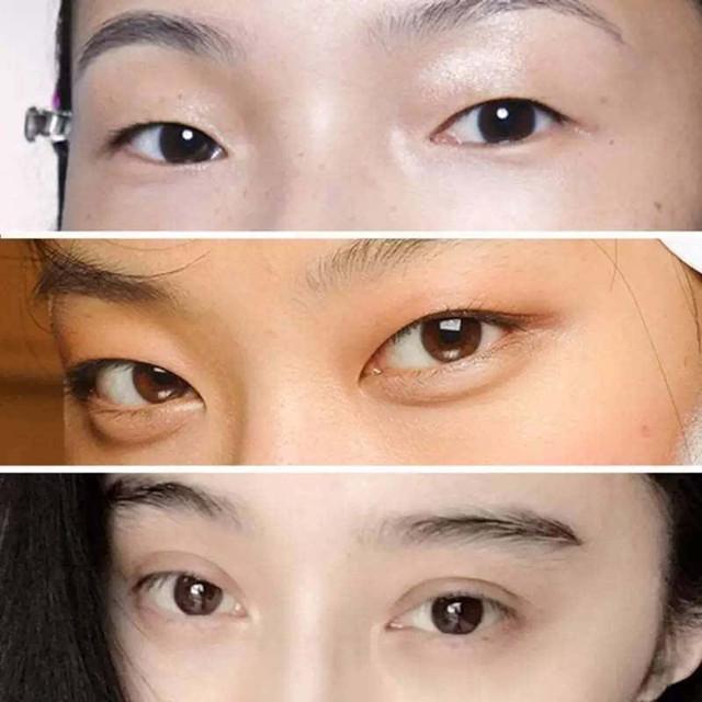 双眼皮怎么变成单眼皮