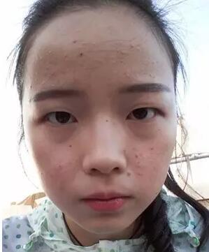 """沈阳网红女主播出名靠""""照骗"""" 真实素颜长这样!"""