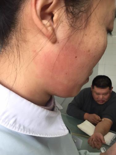 200多斤体检者一巴掌打蒙护士 脸上留下大红印(图)