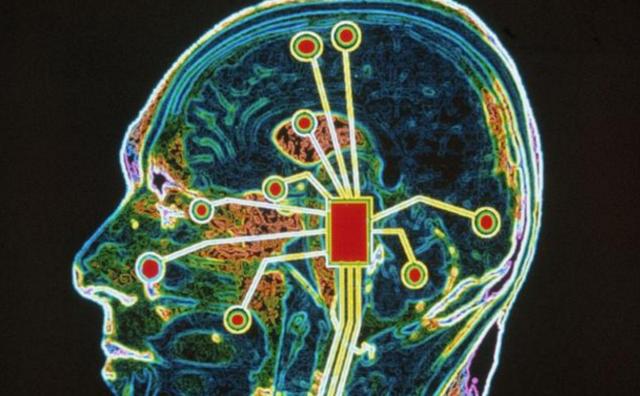 趣味测试:你大脑的年龄有多少岁?