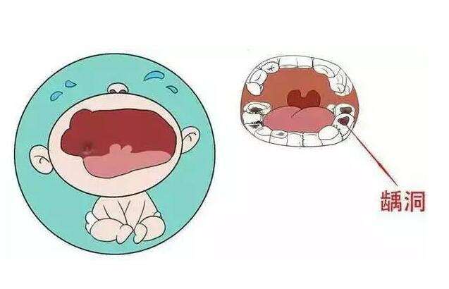 其实,乳牙咀嚼食物可以帮助颌骨和嘴部肌肉发育,赋予孩子良好的面容和