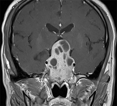 医大二院神经外三科切除罕见巨大侵袭性垂体腺瘤