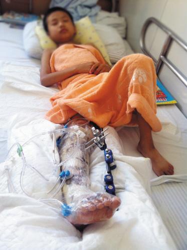 开学前返校 10岁男孩遇车祸或面临截肢