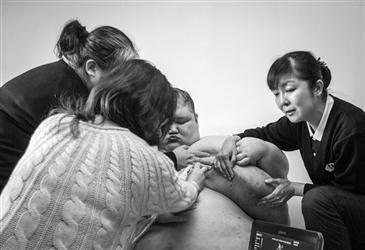 女子独力抚养双胞胎脑瘫儿23年 500斤胖儿想看病却走不出家门