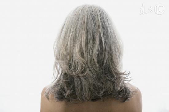 头发变白八大原因 你是哪个?