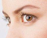 青光眼可致视神经萎缩