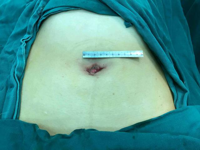 中国医大一院妇科成功完成东三省首例达芬奇机器人单孔腹腔镜手术