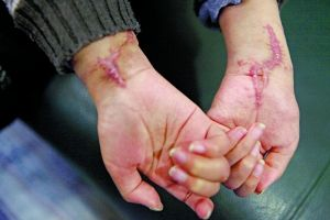 男童双手遭养母砍断 接手后失去活动功能(图)